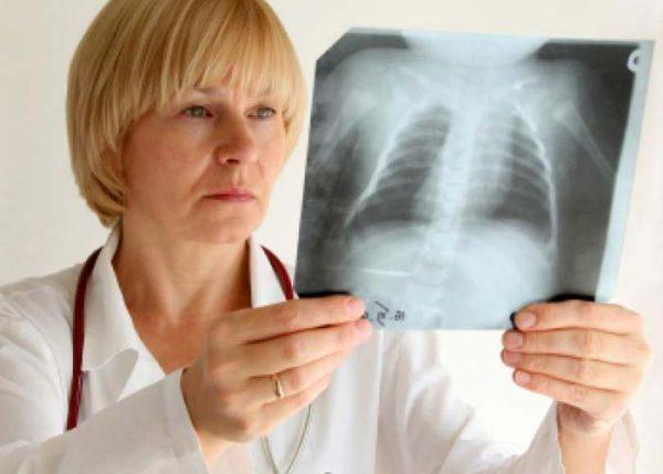 Bệnh lao phổi lây qua đường nào