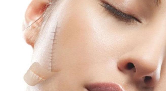 Chia sẻ một số cách điều trị sẹo lồi lâu năm hiệu quả nhất