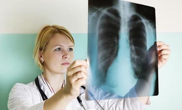 Bệnh lao phổi có lây không? Bệnh lao phổi lây qua đường nào?